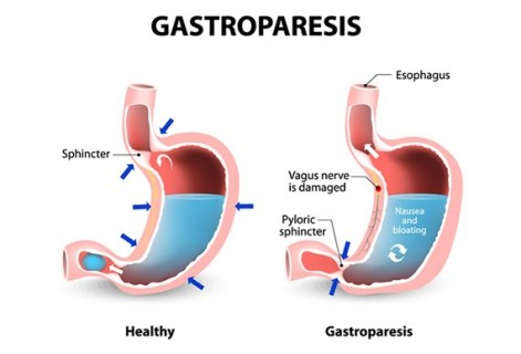 Wilson-McShane and your Health: Gastroparesis Awareness